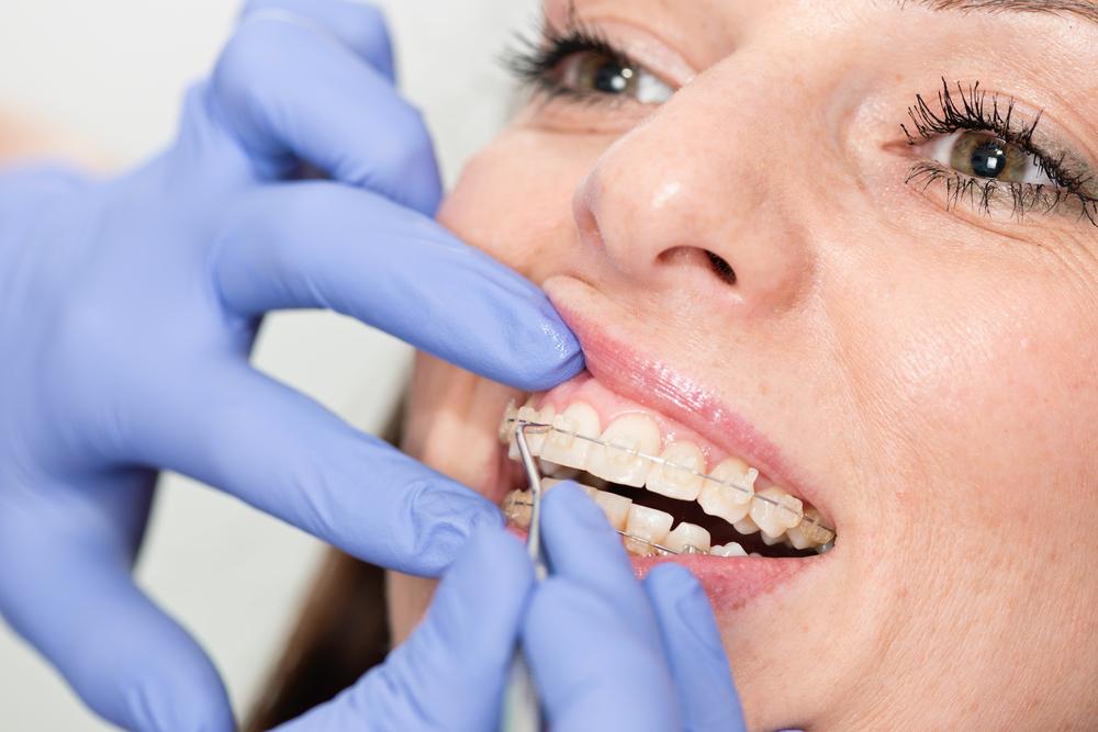 Ортодонт в Ирпене