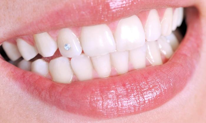 Украшение зубов стразами