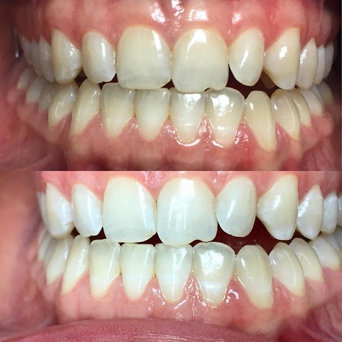 отбеливание зубов magic white акции